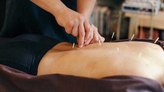 acupuncture bien fait